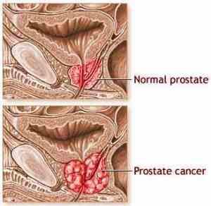 marcadores bioquímicos para el cáncer de próstata