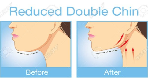 JAWSOME – One Exercise To Get Rid Of The Double Chin Fast! (Video)