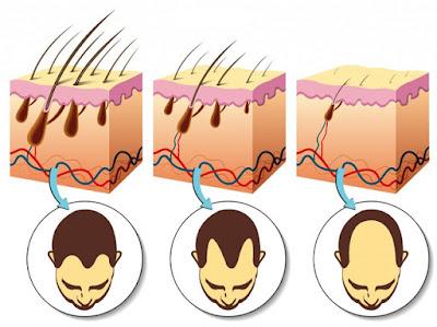 Thuốc trị rụng tóc hiệu quả năm 2018-Qik Hair