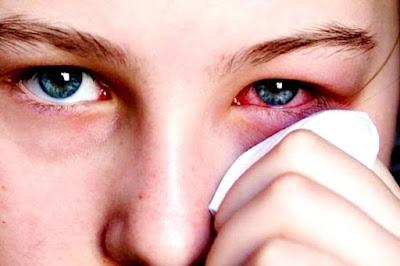 Bệnh đau mắt đỏ là bệnh phổ biến, dễ mắc phải