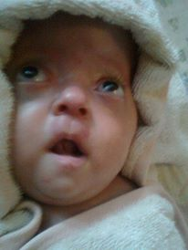 My apert syndrome baby