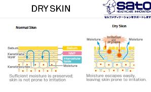 cara tips mengatasi kulit keirng dan tumit pecah pecah dengan produk made in japan sato pastaron ultra hydrating cream nurul sufitri review mom lifestyle blogger kesehatan