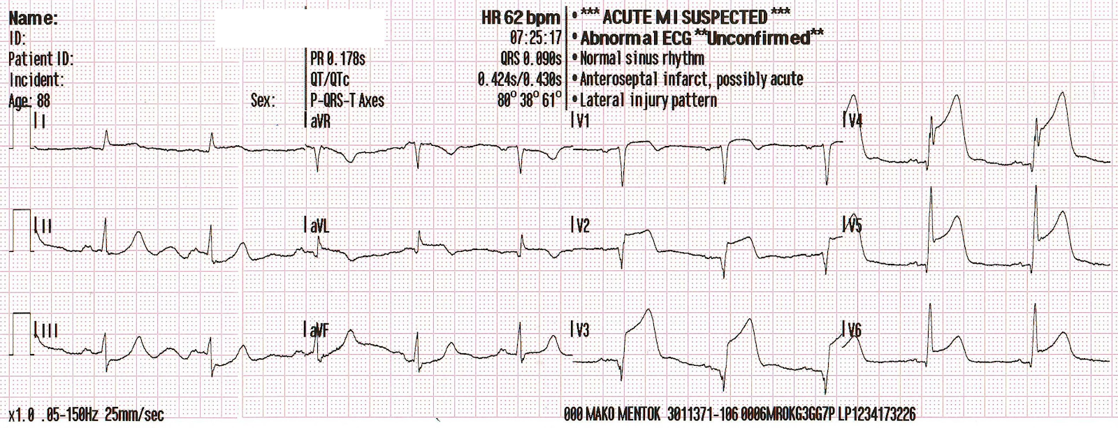 Dr  Smith's ECG Blog: Besides the Nonspecific T-wave Inversion in