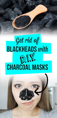 Blackheads removal with DIY charcoal masks
