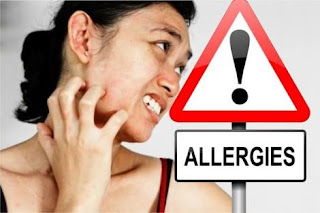 pengobatan alergi http://www.udan.name