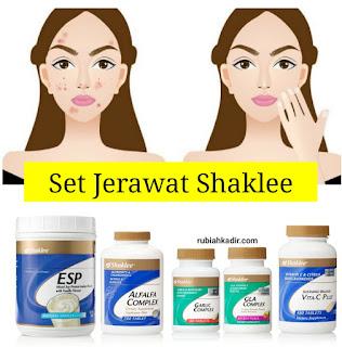 Set Jerawat Shaklee