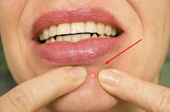 BAHAYA! Jangan Pencet Jerawat di Dagu! Bisa Kena Sindrom Berbahaya