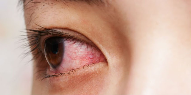 Mata Merah Tanpa Sebab