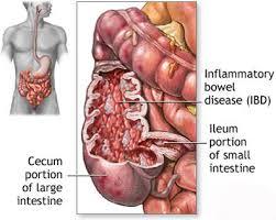 cara mengatasi usus yang meradang