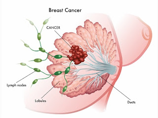 breast cancer biopsy