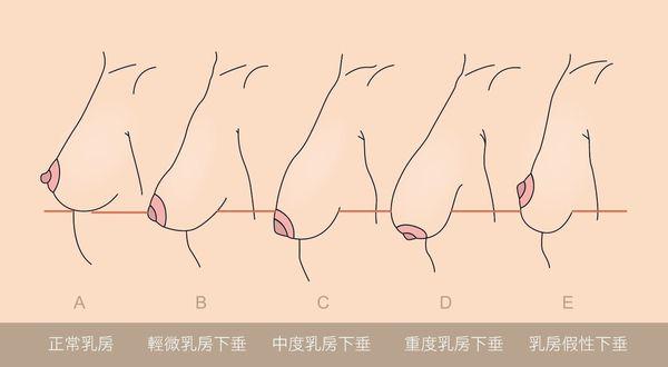 胸部下垂的胸型