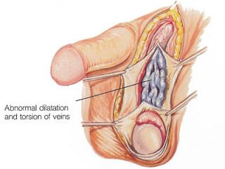 obat ampuh untuk penis keluar nanah di kota jambi
