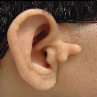 ENT for medical students: ENT PICTURES - EAR