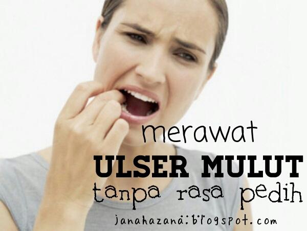 hilangkan ulser mulut