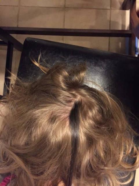 Anak Yang Memiliki Satu Garis Rambut Sangat Gelap
