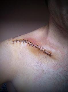 Herida fractura de clavícula