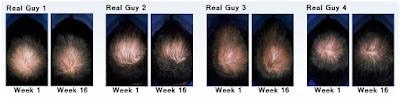Penumbuh Rambut Botak Ampuh dan Terbaik Kirkland Signature Minoxidil Original 100%