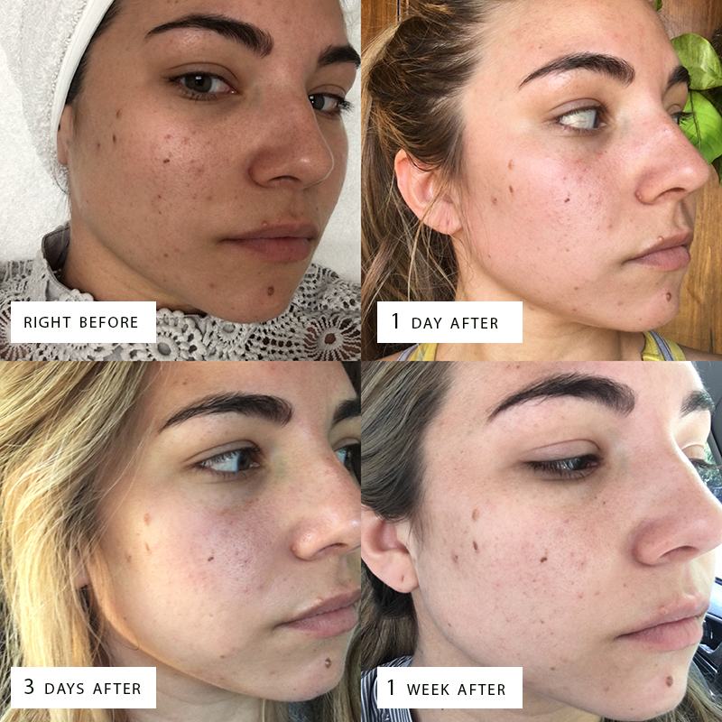 fashion blogger, facial before and after, the truth about microneedling