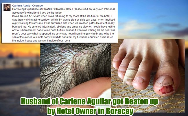 Husband of Carlene Aguilar got Beaten up by Hotel Owner in Boracay