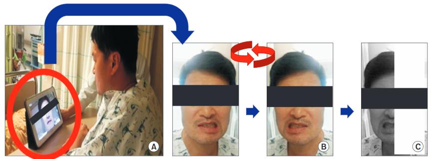 図:中枢性顔面神経麻痺のミラーセラピー タブレットPCを使って