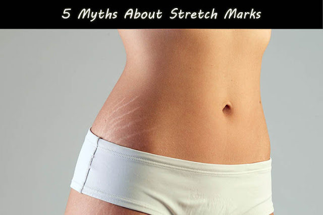 5 Myths About Stretch Marks