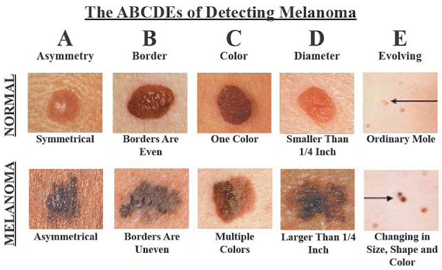 what are signs of skin cancer from the sun