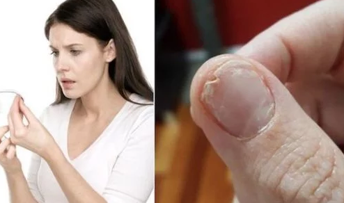 Do You Have Trouble Sleeping, Thin Brittle Nails And Hair Loss? Here's What You Need To Know!