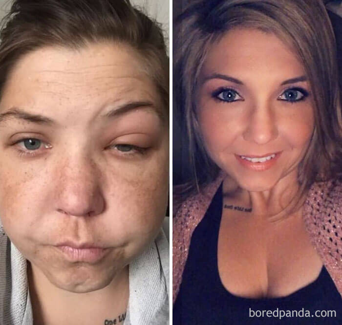 22 Incredible Then And Now Pictures That Depict What Happens When You Quit Drinking