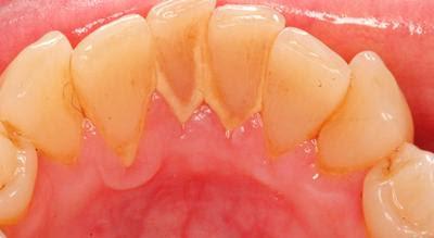 Artikel Cara Membersihkan Karang Gigi Sendiri Secara Alami