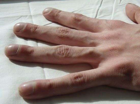 A körmök állapotából egy orvos megállapíthatja 064e2c606a