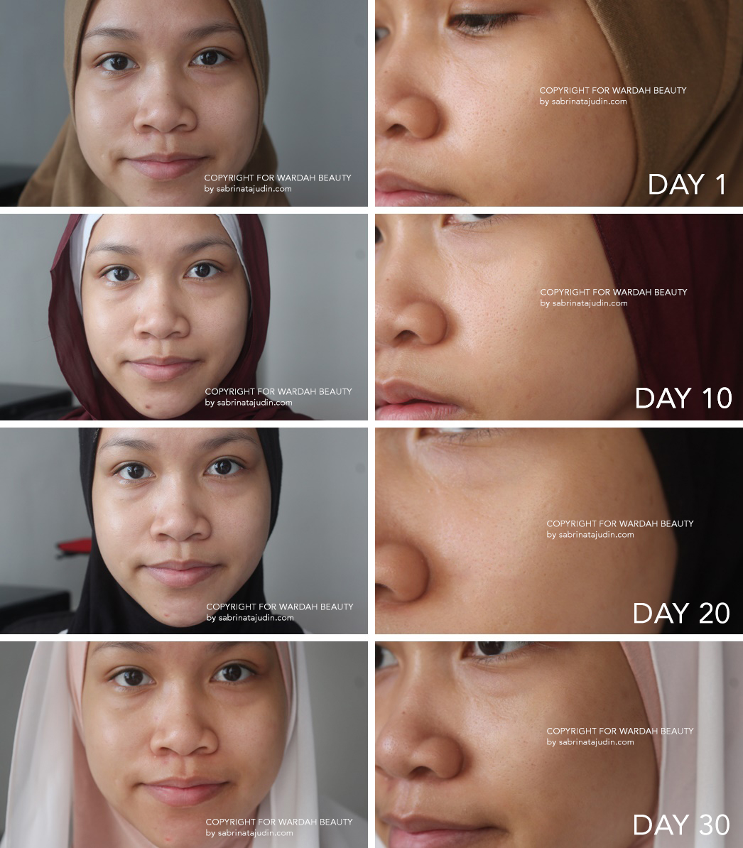 Wardah White Secret Skincare Review 30 Days Verdict Inirahasiaku Night Cream Range Is Not Like Your Typical Whitening Skin Care Product That Has Harsh Chemical Such As Mercury It Promises To Give You A Brighter