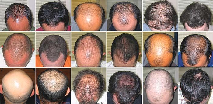 Image result for गंजो के भी बाल उगाए काले, लम्बे और घने बालों