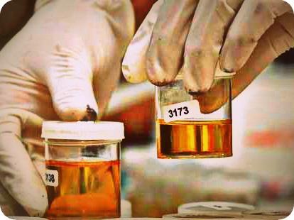 BNNP Papua Perikssa Urine 75 Prajurit Lanud Manuhua