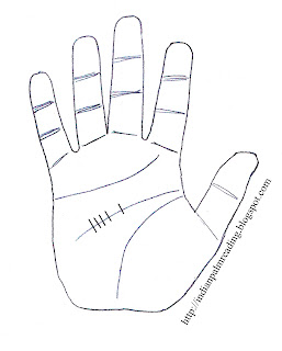 headache sign in palmistry