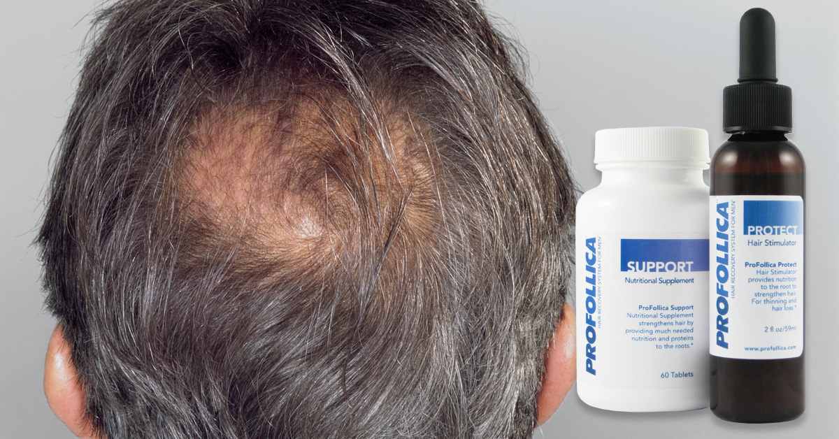 Profollica Hair Growth Review - Honest Review of ProFilica