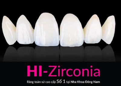 những điều cần biết về bọc răng sứ -8