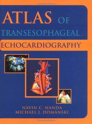 Atlas Siêu âm Tim qua Thực quản Phiên bản 2e