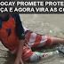 LUCAS POCAY PROMETE PRÓTESE PARA CRIANÇA E AGORA VIRA AS COSTAS