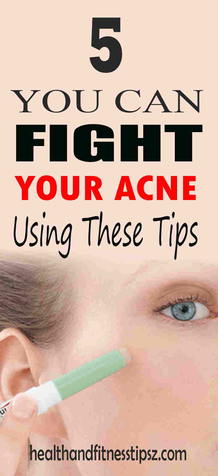 7 remedy for acne