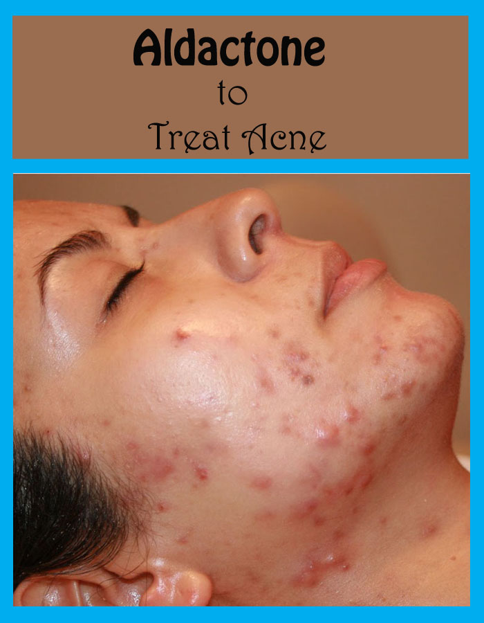 Aldactone to Treat Acne