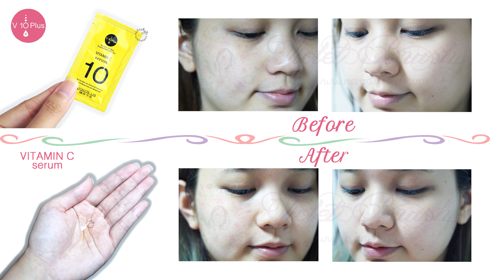 v10-plus-serum-acne-treatment-series-review-vitamin-c-before-after-indonesian-beauty-blogger