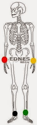 ecg placement électrodes périphériques