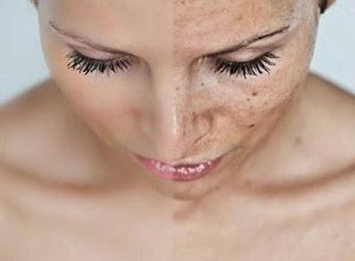 Secchezza della pelle: rimedi