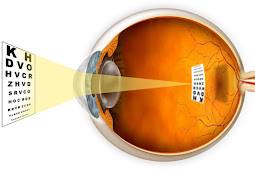 New analysis Shows shortsightedness is Prevented