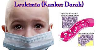 http://mypotik.blogspot.com/2017/09/penyakit-leukimia-tidak-memiliki-gejala.html