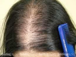 Set Rambut Gugur Shaklee bantu merawat masalah rambut gugur