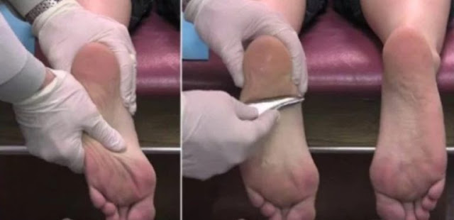 this is how to treat plantar fasciitis naturally
