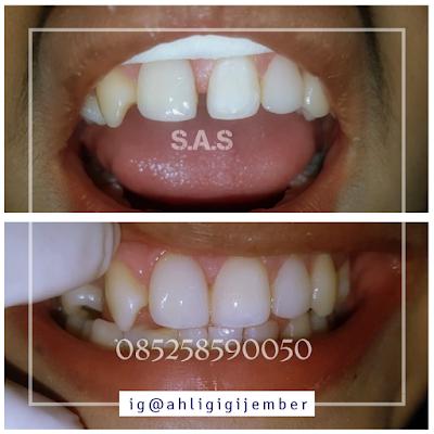 Veneer solusi gigi renggang bercelah dan diastema