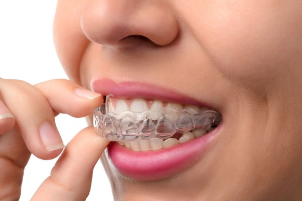 Greenbelt Dentist, teeth, caring for teeth, dental care, invisalign braces