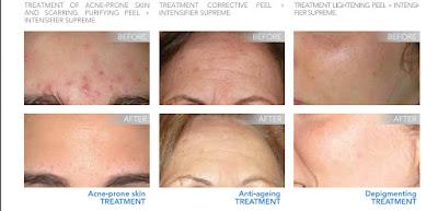 Pēc retinola pīlinga procedūras